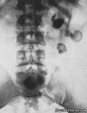 Лимфоузлы в брюшной полости увеличены у ребенка причины