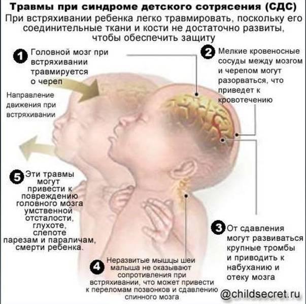Признаки сотрясения мозга у ребенка от 1 года до 2, у младенцев и грудничков до 12 месяцев: симптомы, как определить и понять?