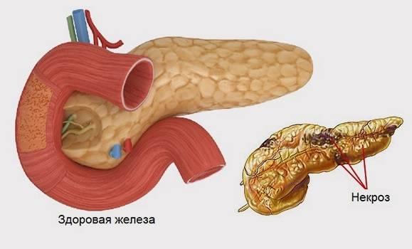 Острый, хронический реактивный панкреатит у детей: симптомы, лечение, диета