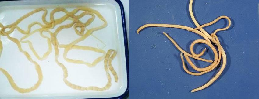 Фото глистов в организме человека (симптомы и описание)