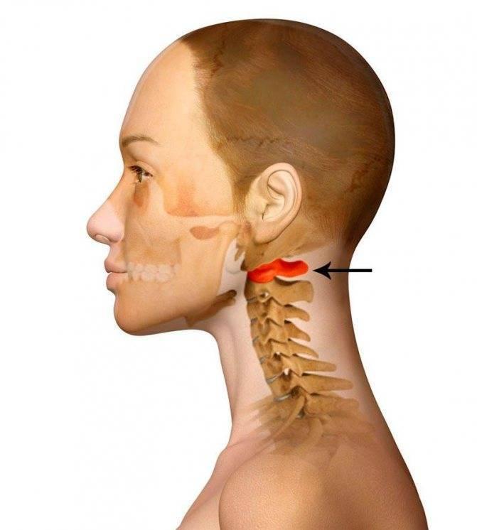 Родовая травма шейного позвоночника последствия