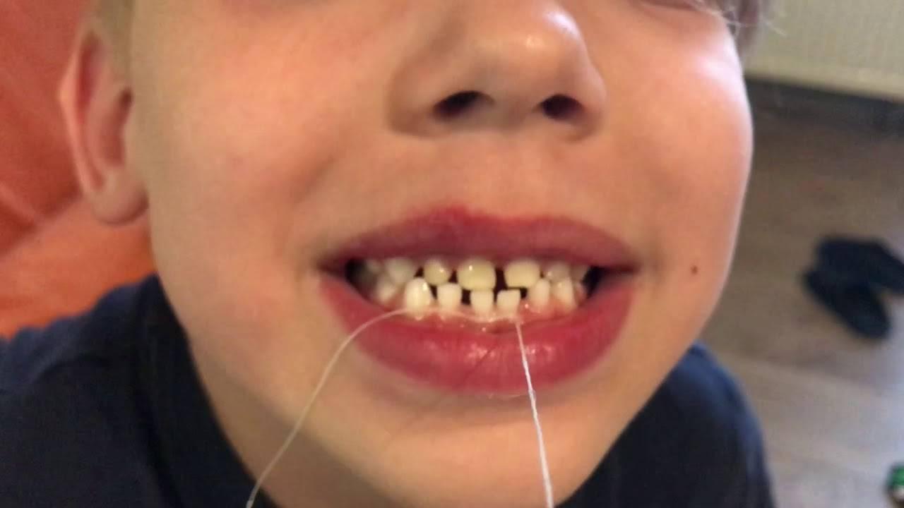 Как вырвать зуб ребенку - основные рекомендации и способы