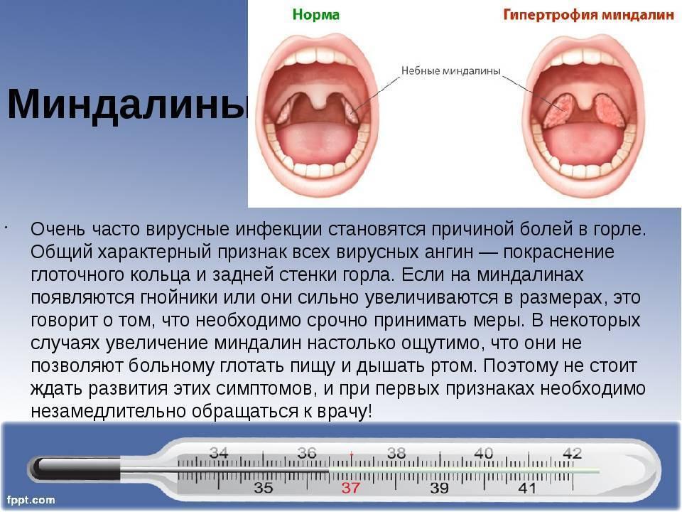 Герпес в горле у ребенка – как лечить герпесную ангину у детей? герпесная ангина у детей – симптомы, фото
