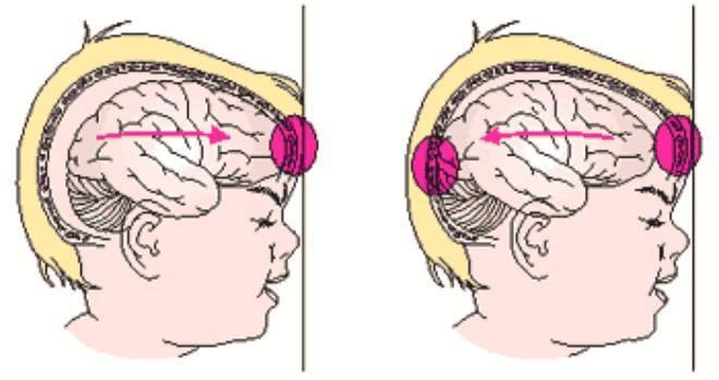 Травма головного мозга: виды, последствия, первая помощь при травмах головы и реабилитация