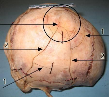 Перелом черепа у ребенка: симптомы, лечение и последствия