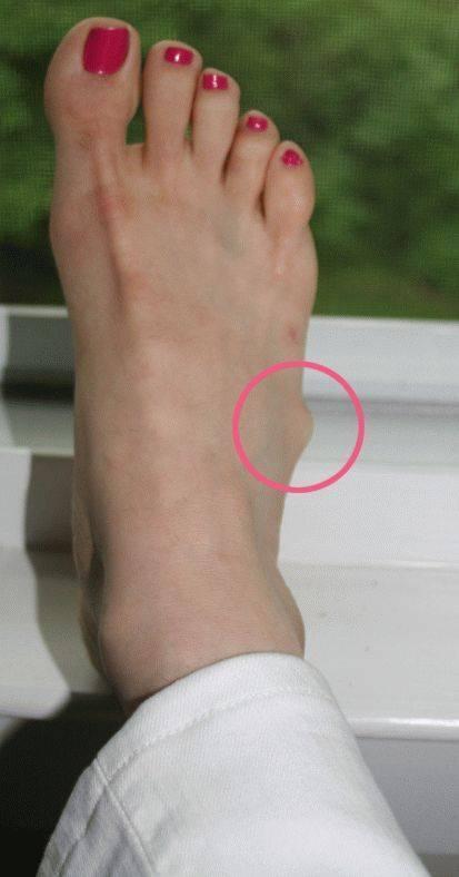 Гигрома на ноге: причины, лечение без операции, фото