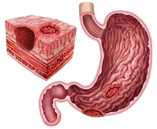 Язвенная болезнь двенадцатиперстной кишки: симптомы и лечение препаратами, диета