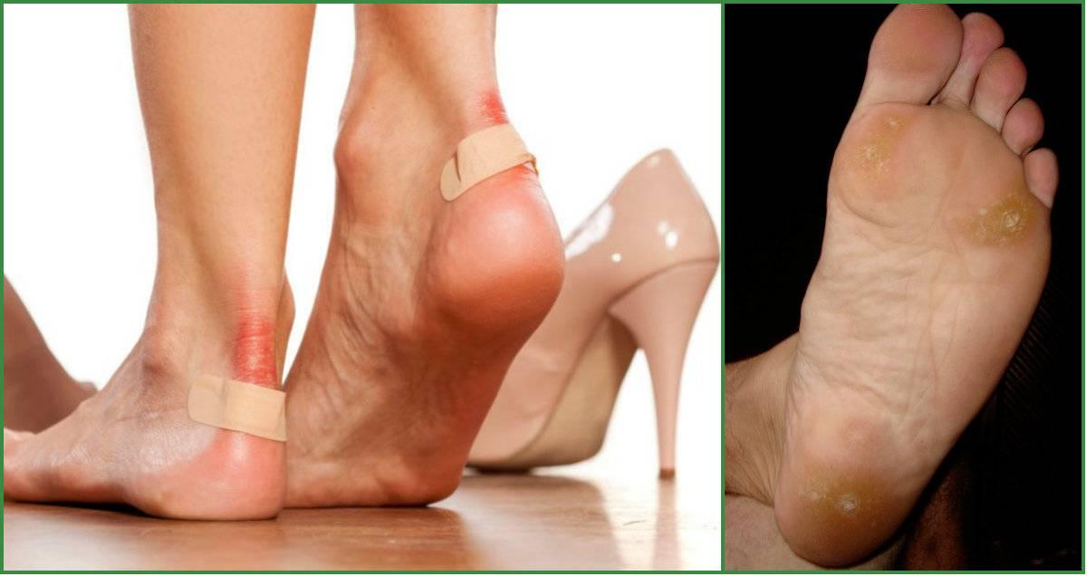 Натоптыши у ребенка на ногах: что это такое, как выглядят на фото сухие мозоли на пятках, а также почему они появляются и как лечить?