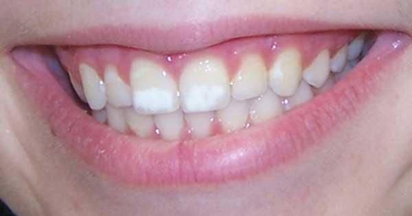 Почему у ребенка на зубах белые пятна