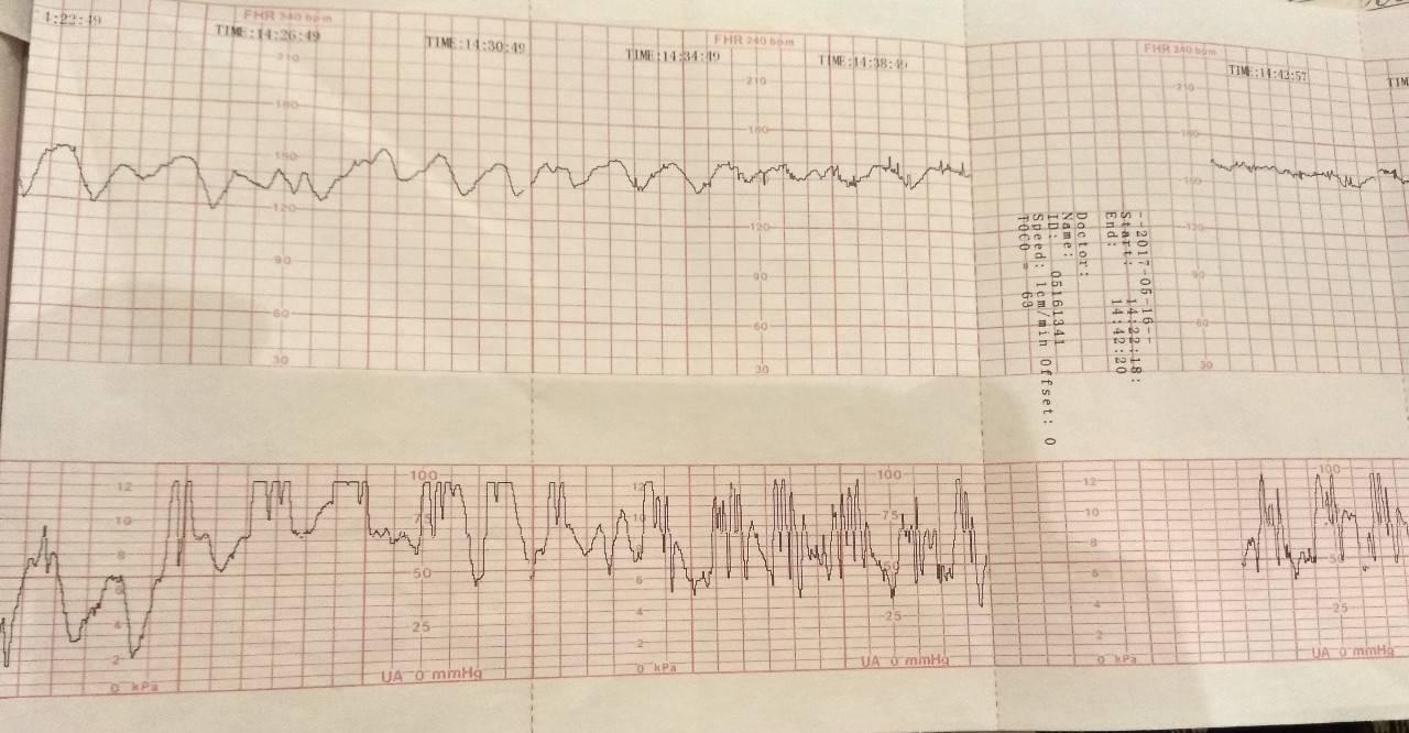 Расшифровка ктг при беременности: как расшифровать показатели состояния плода – оценка, что означает подозрительный результат по figo, норма в баллах и акцелерации