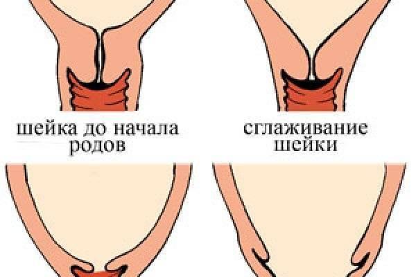 Готовность организма к родам: главную роль играет раскрытие шейки матки. как перед родами ускорить раскрытие шейки матки в домашних условиях: «мужетерапия» и специальные упражнения