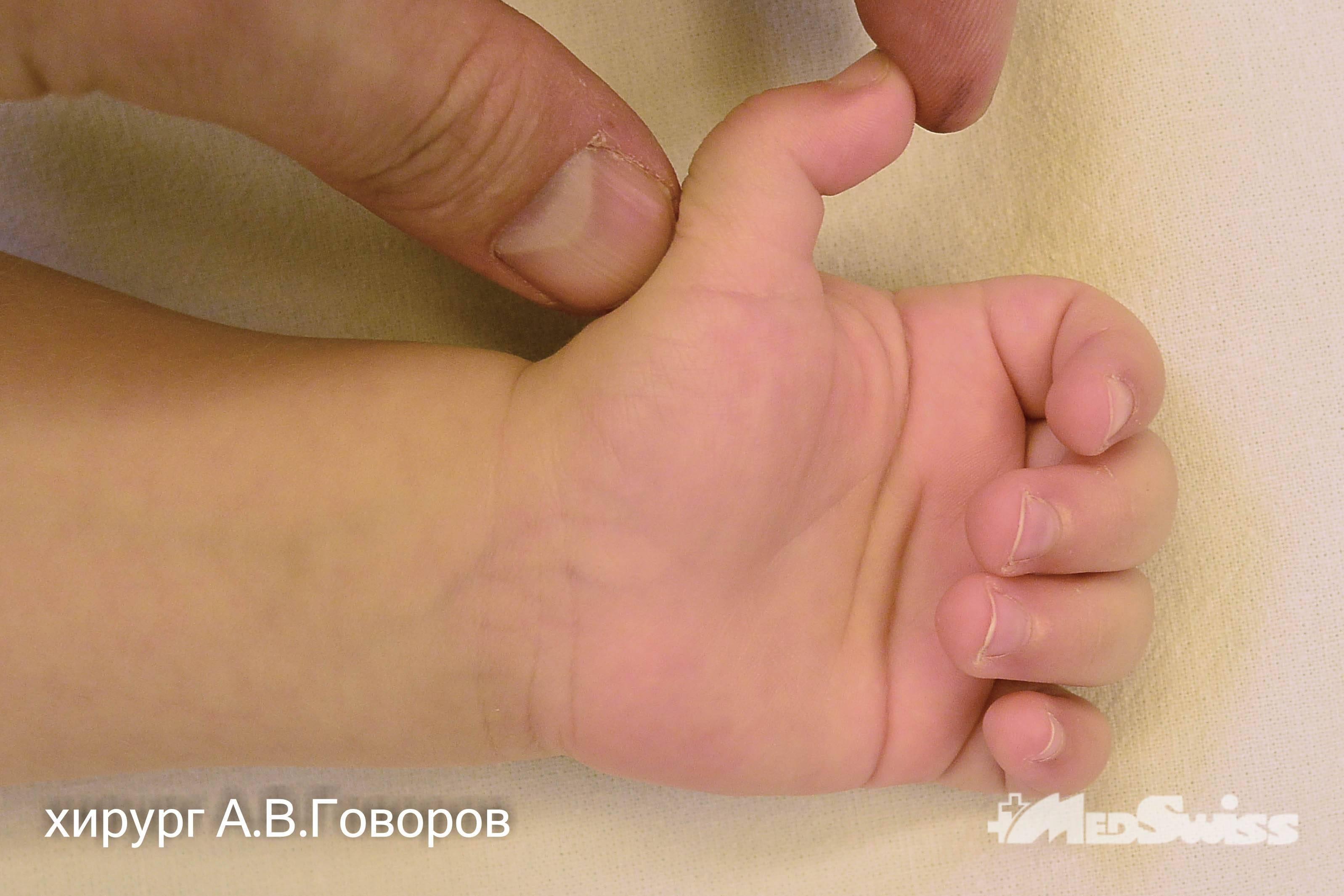 Болезнь нотта (стенозирующий лигаментит) у взрослых и детей