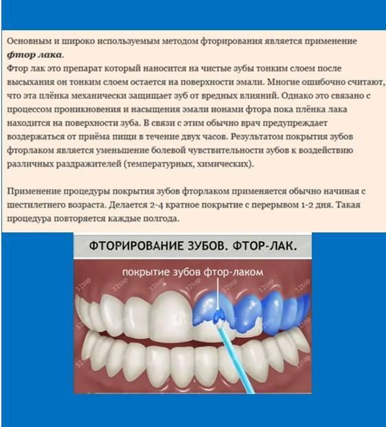 Процедура покрытия зубов фторлаком для их защиты и отбеливания