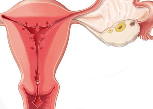 Осложнения после родов у женщин и последствия их несвоевременного лечения