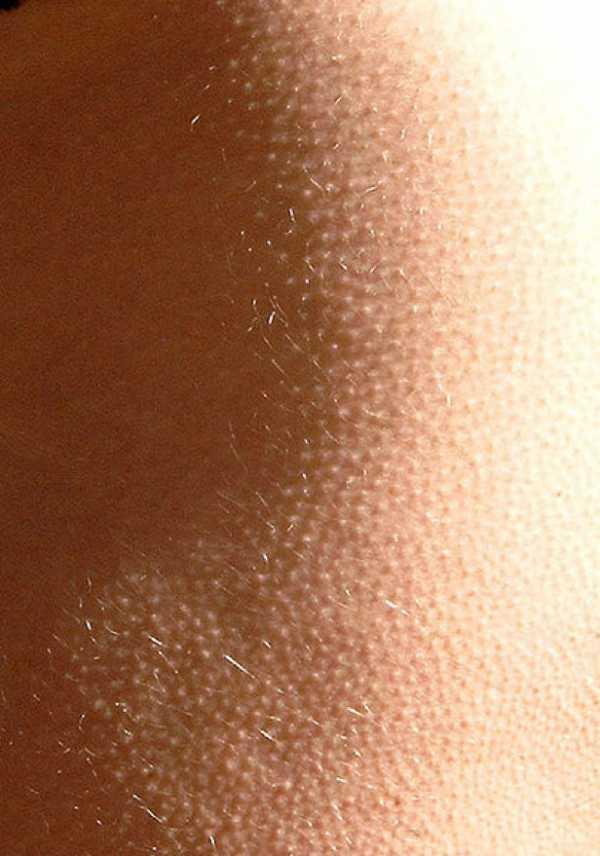 Гусиная кожа у ребенка: причины сыпи на животе, ногах, локтях, лице и лечение