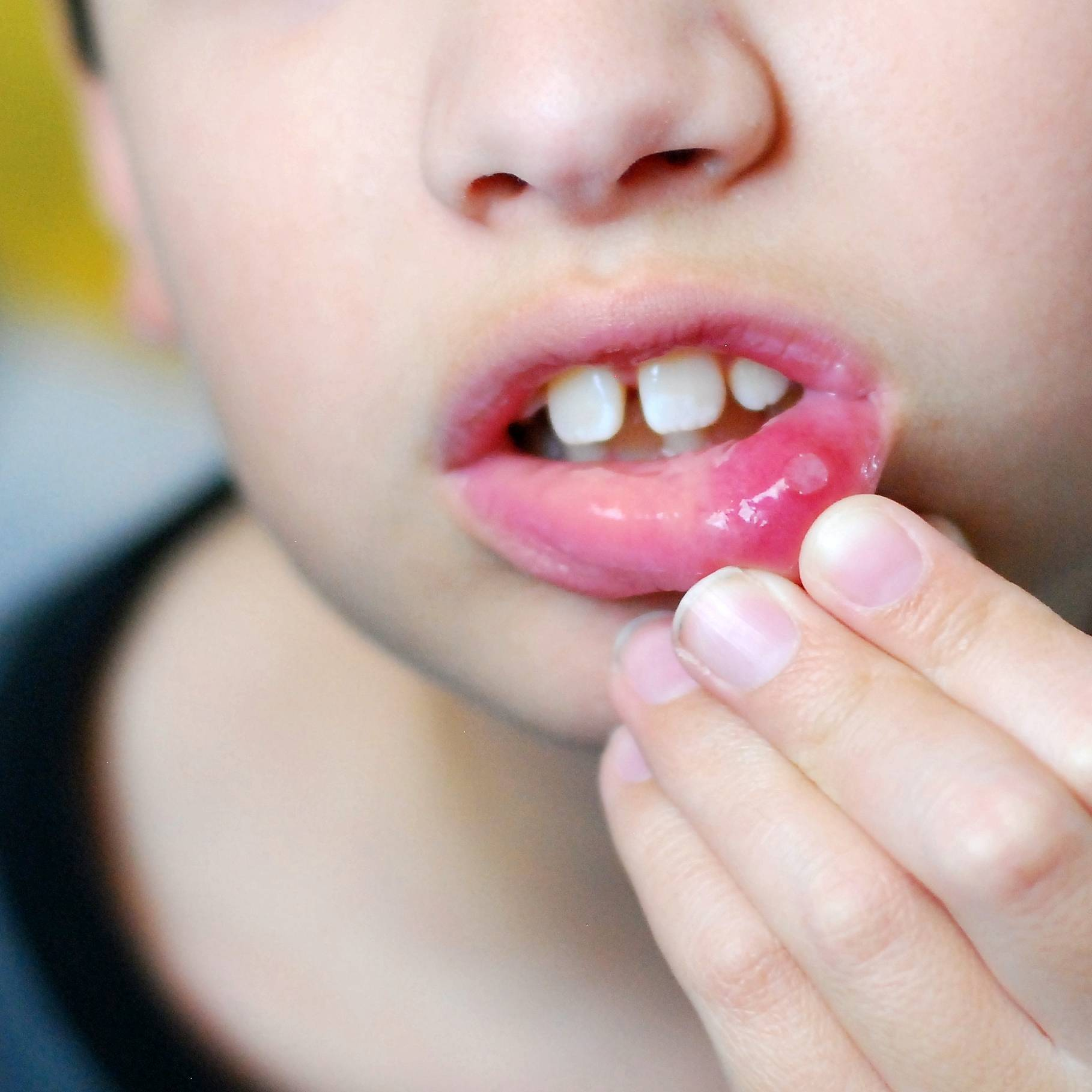 Как избежать появления острого герпетического стоматита у детей?