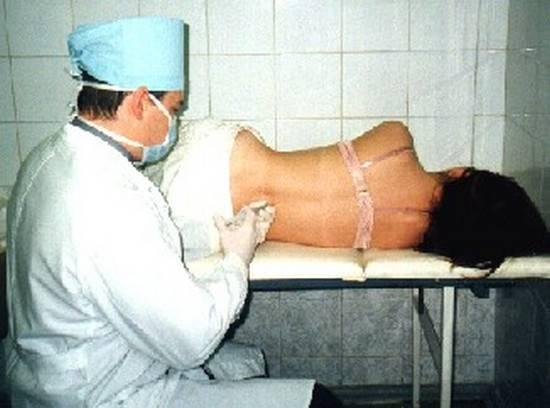 Болит спина после анестезии: последствия эпидуральной и спинальной или спинномозговой - что делать при болях в позвоночнике после родов как сделать блокаду - названия лекарства