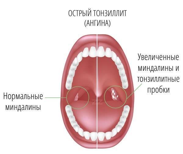 Острый тонзиллит у детей и взрослых:  симптомы и лечение