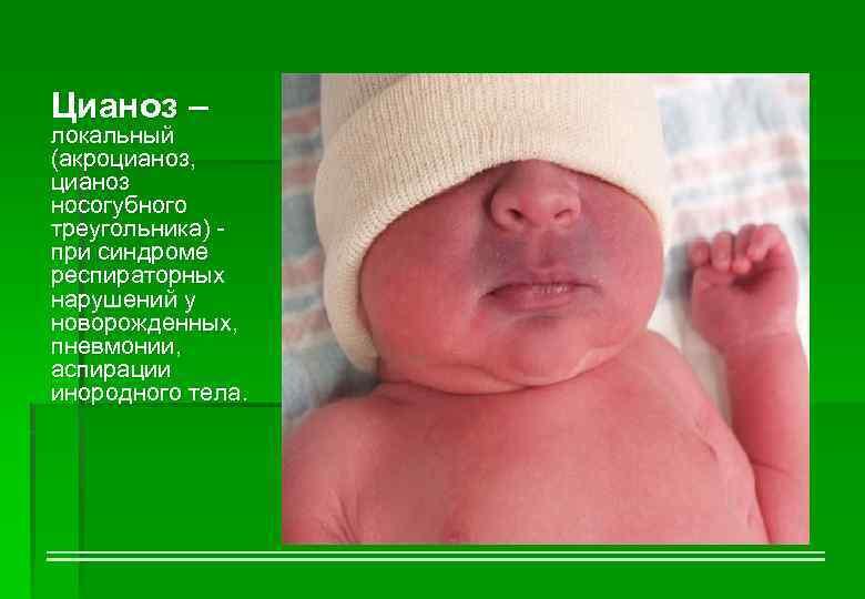 Синюшность носогубного треугольника у ребенка комаровский - врачебный метод