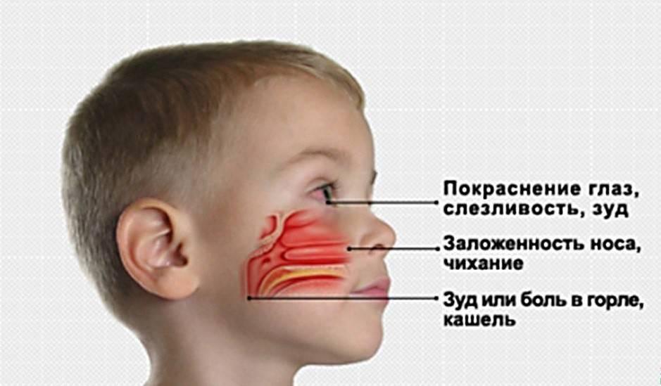 У ребенка кровавые сопли — простуда
