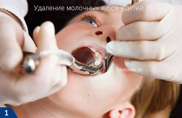 Удаление зуба – осложнения и последствия