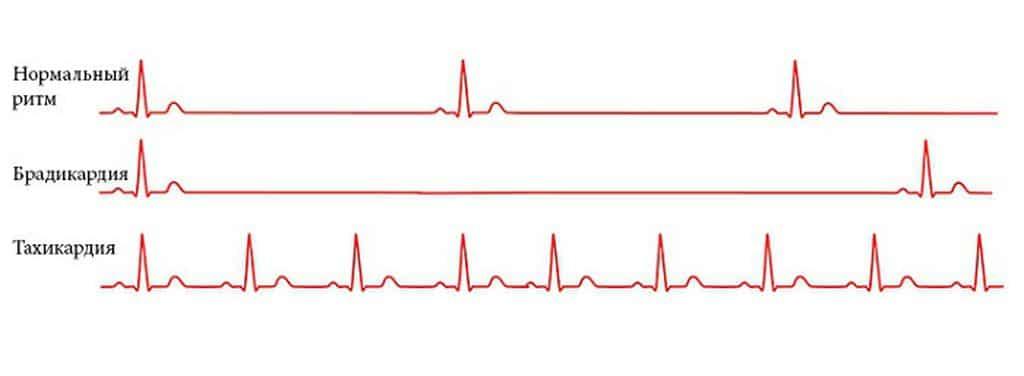 Синусовая брадикардия у детей   лечение сердца