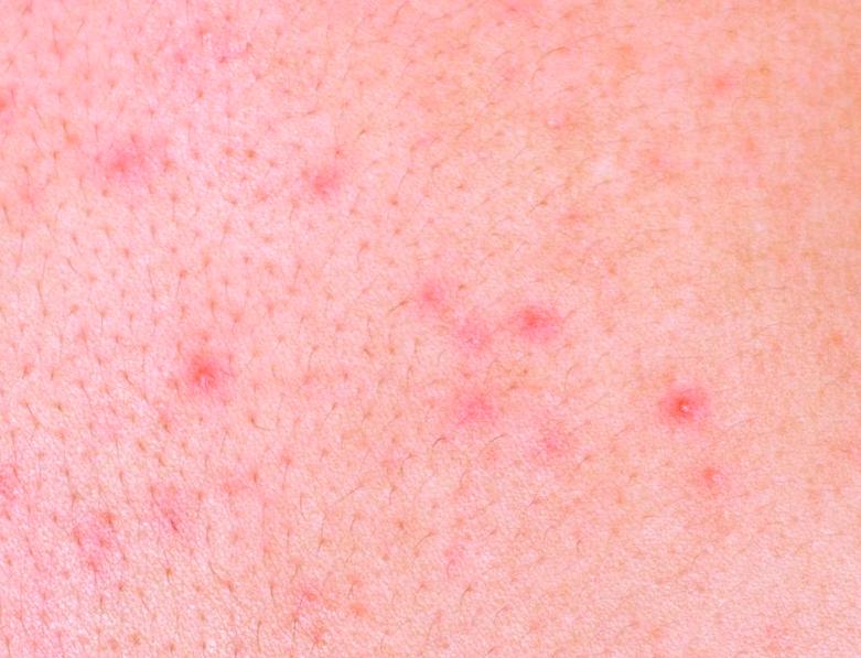 Сыпь на лице у ребенка фото все виды сыпи
