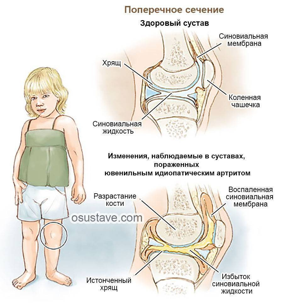 Причины развития и лечение артрита тазобедренного сустава у детей