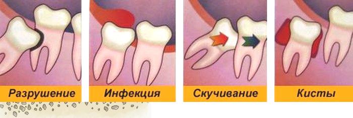 Удаление молочных зубов у детей: показания и последствия