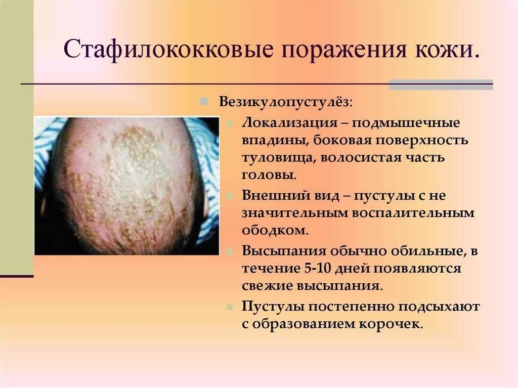 Инфекционные заболевания кожи у детей. инфекционные и неинфекционные заболевания кожи новорожденных