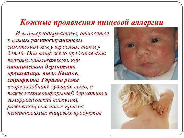Гастроинтестинальные проявления пищевой аллергии у детей - об алкоголе