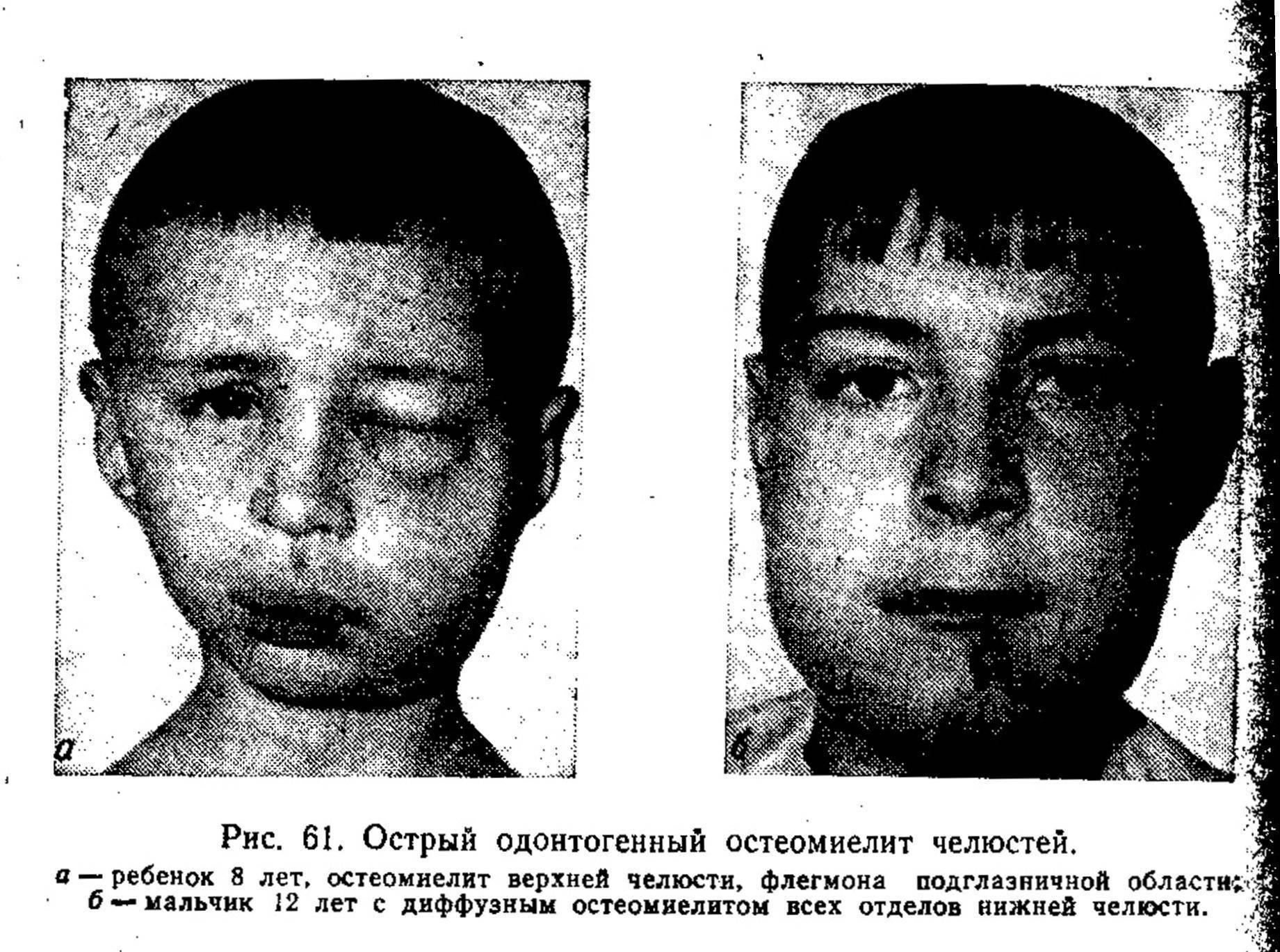 Остеомиелит у ребенка: симптомы, причины, классификация, последствия эпифизарного, аутоиммунного, острого и гнойного заболевания у новорожденных