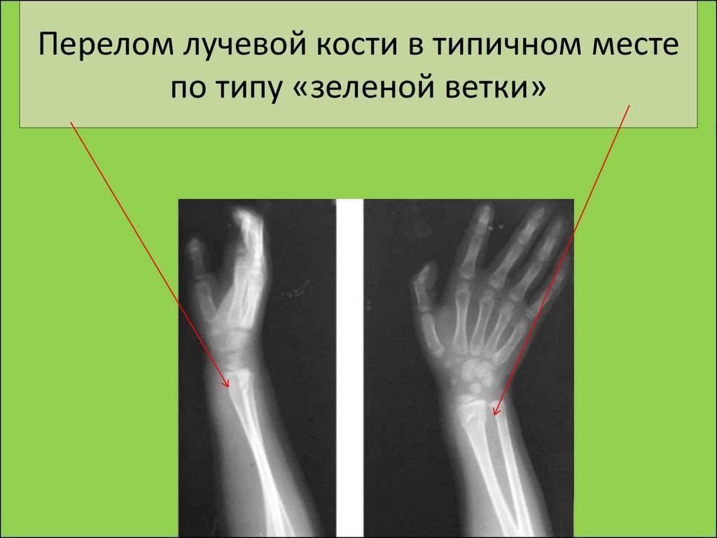 У ребенка перелом руки со смещением лечение срок срастания