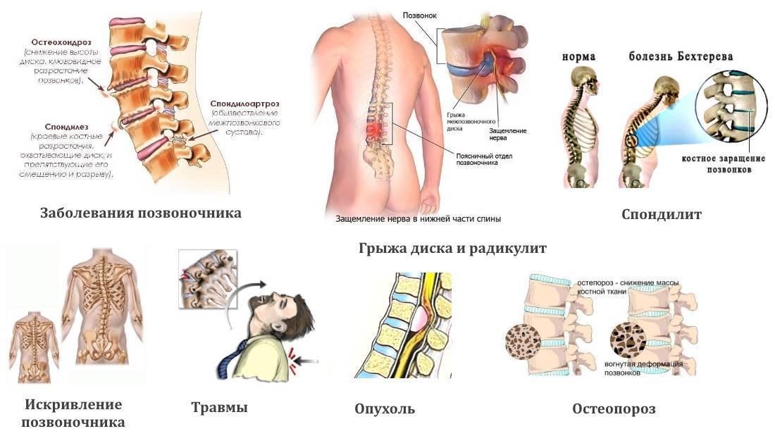 Крестцовый остеохондроз - симптомы, причины, стадии, профилактика