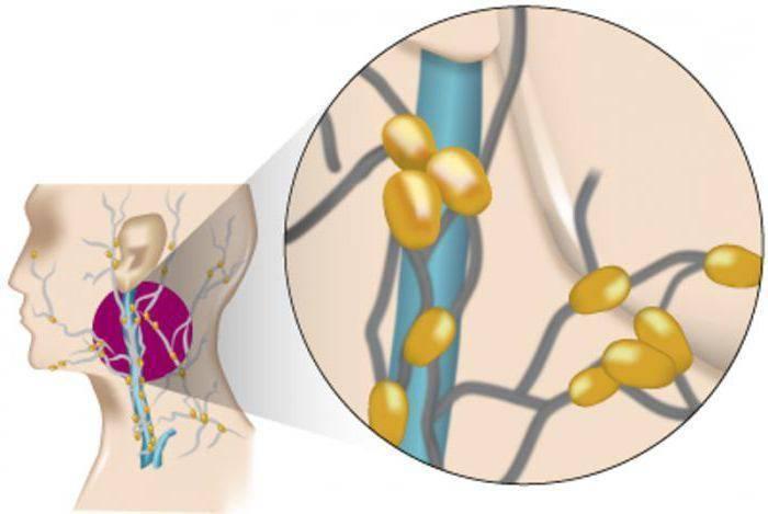 Лимфома: что это такое, симптомы и диагностика болезни