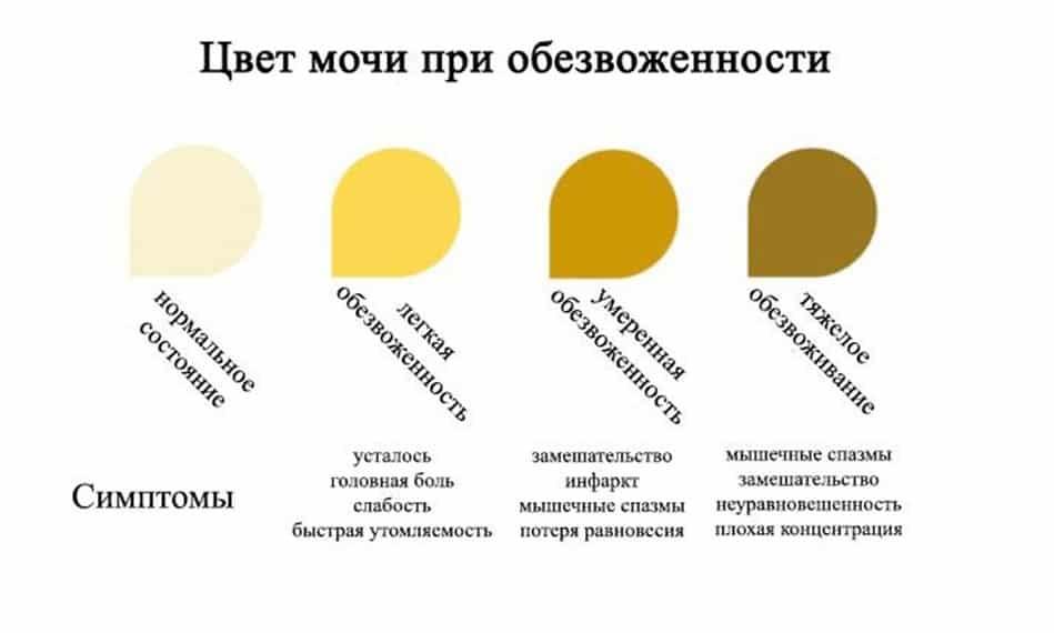 Почему у ребенка в 2-4 года и грудничка темно-желтого цвета моча по утрам?