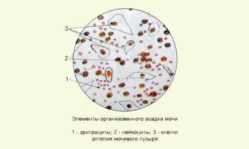 Эпителий плоский в моче при беременности: повышен и норма