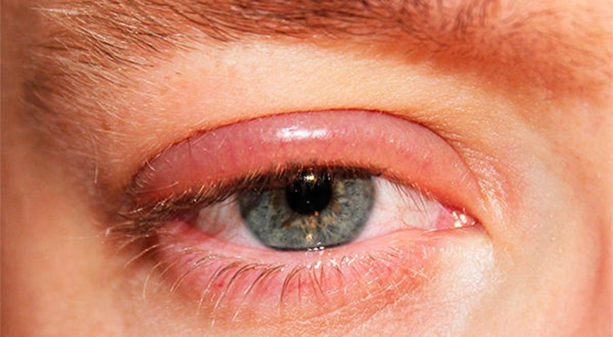 Неприятные симптомы не дают покоя? что делать, если глаза красные и воспалены: чем лечить