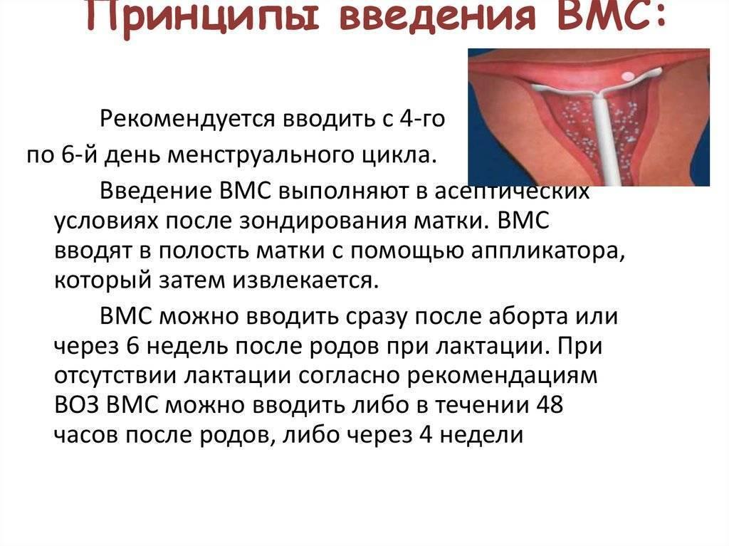 Спирали внутриматочные для предотвращения беременности: плюсы и минусы, виды контрацептива, принцип работы и установка