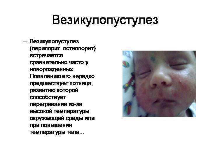 Вирусный дерматит лечение у детей