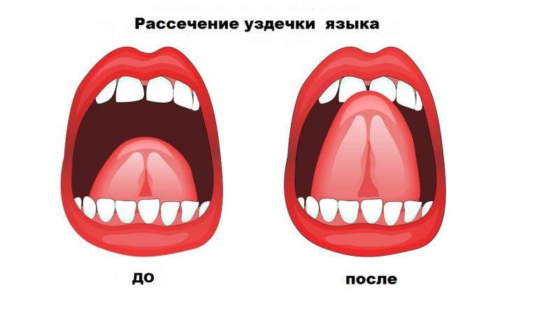 Короткая уздечка языка у ребенка: от симптомов до методов коррекции