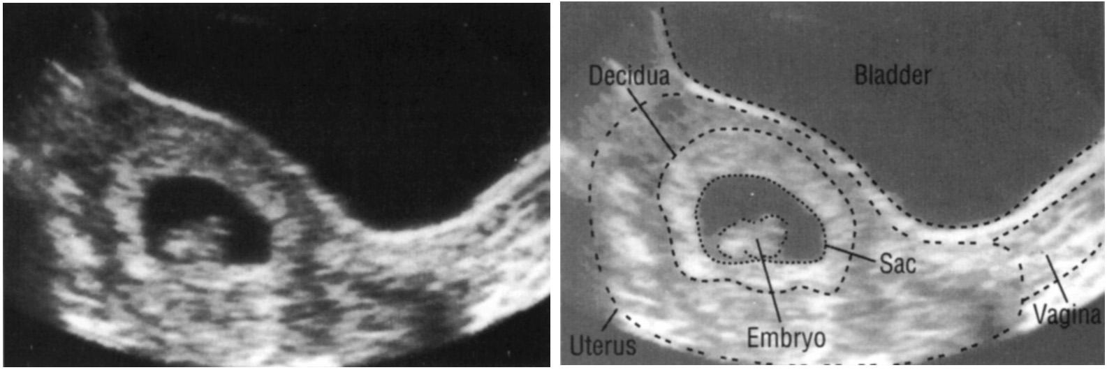 Анэмбриония: причины синдрома пустого плодного яйца, диагностика, методы лечения, профилактика патологии