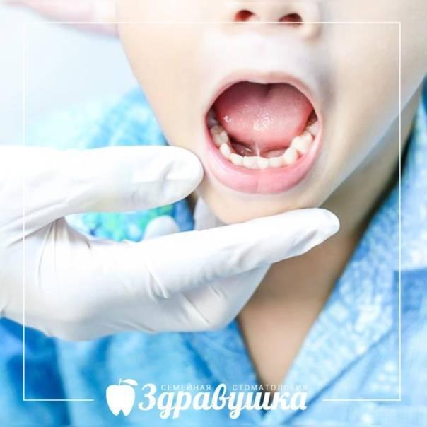 В каком возрасте детям подрезают уздечку под языком и зачем делать пластику взрослым: фото и процедура операции