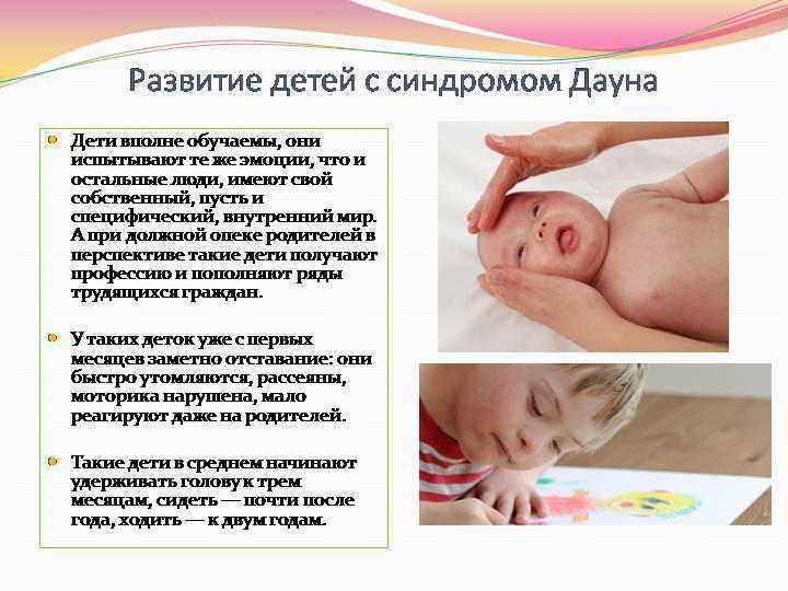 Синдром дауна: причины, признаки и сопутствующие патологии