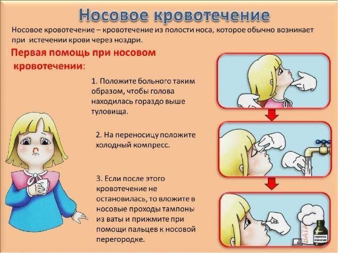 Почему у ребенка из носа идет кровь: возможные причины, первая помощь, способы лечения и комаровский о профилактике