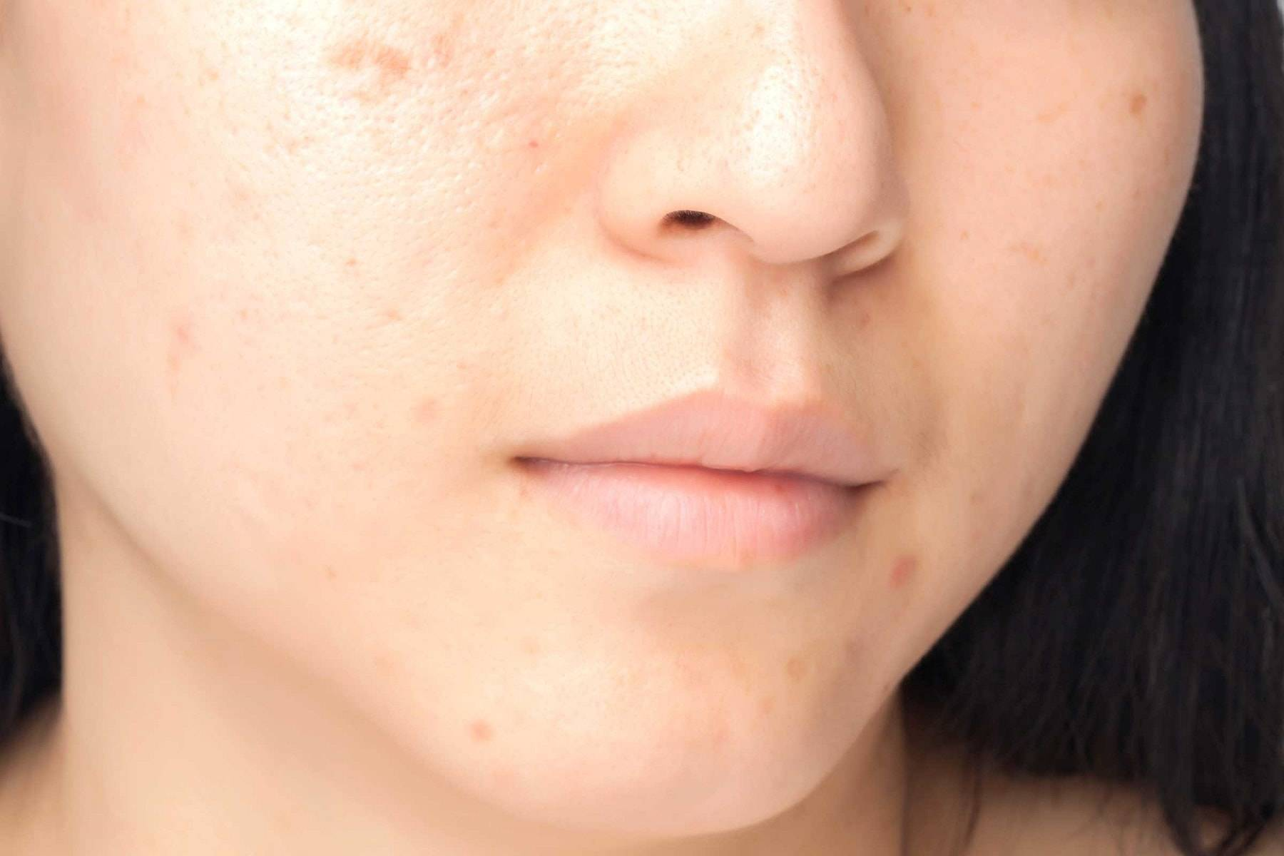 Как избавиться от шрамов после ветрянки у детей