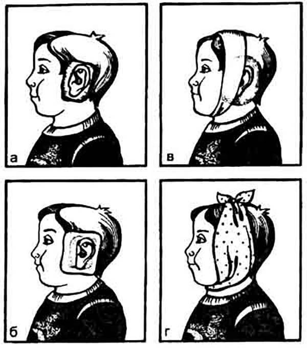 Компресс для уха: как сделать спиртовую и водочную повязку при отите, компрессорное лечение на ухо ребенку - о здоровье