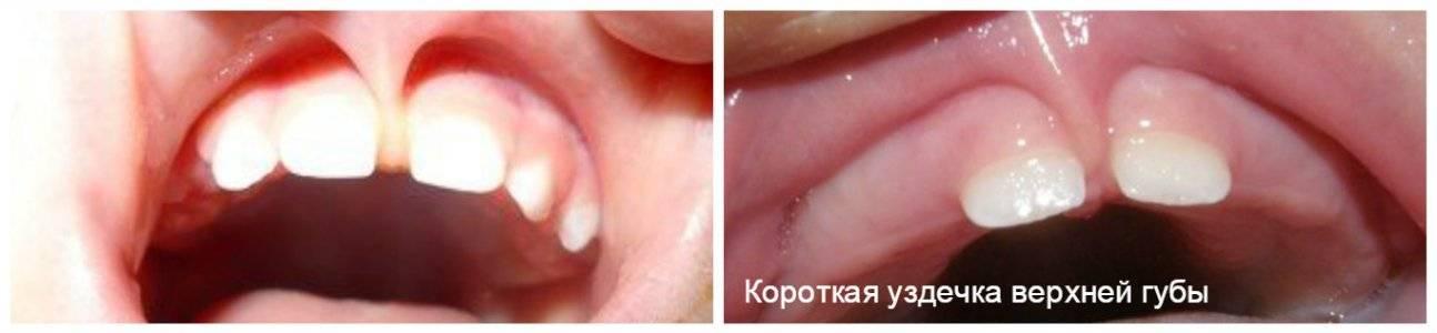 Необходимость подрезания уздечки под языком у детей