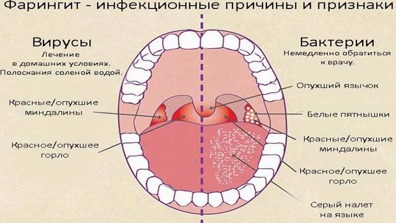Тонзиллит у детей. причины, симптомы, лечение и профилактика тонзиллита | здоровье детей