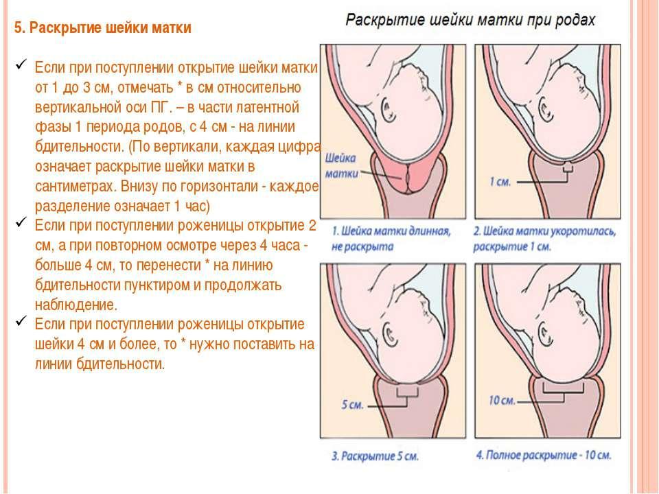Шейка матки перед родами (12 фото): какая должна быть, и на сколько пальцев должна открыться? тонус и снятие швов перед родами, определение зрелости и особенности у повторнородящих